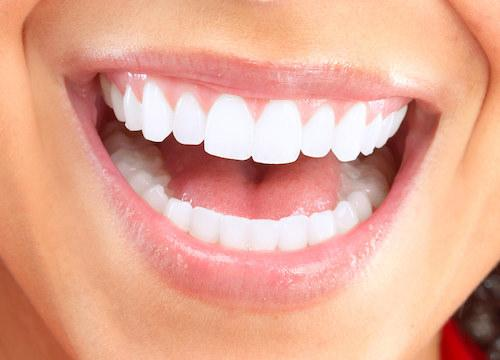 Close up of white teeth | Cosmetic Dentistry Eagan MN