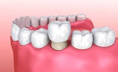 Diagram of dental crown over tooth | Dental Crowns Eagan MN