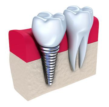 Diagram of dental implant in gums at our 55122 dentist office