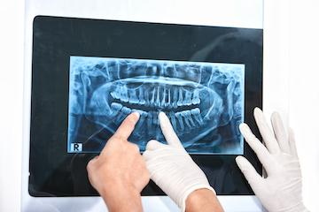 Dentists pointing to digital x-ray at our Eagan MN dentist office