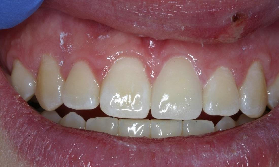 Results from restoration with dental crowns in Eagan MN