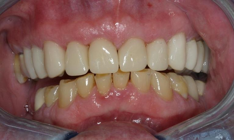 CEREC-Porcelain-Crowns-After-Image