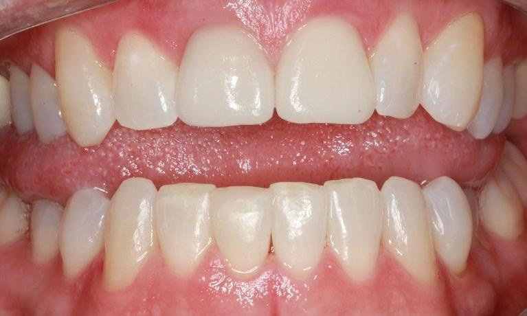 Full-Smile-Makeover-ClearCorrect-Crowns-Whitening-Fillings-After-Image
