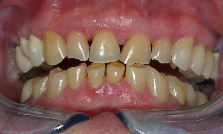 CEREC-Porcelain-Crowns-Before-Image