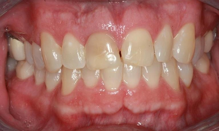 Full-Smile-Makeover-ClearCorrect-Crowns-Whitening-Fillings-Before-Image