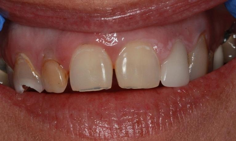 Porcelain-Crowns-Before-Image